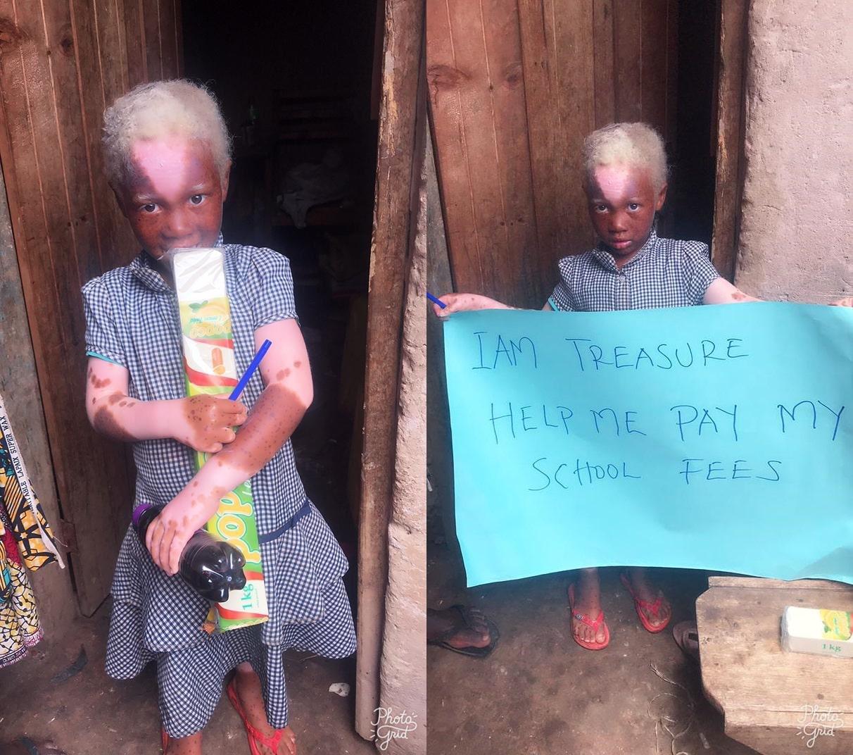 Antorine Treasure is 5 years from Butobere Kabale municipality.